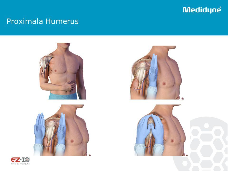 Proximala Humerus