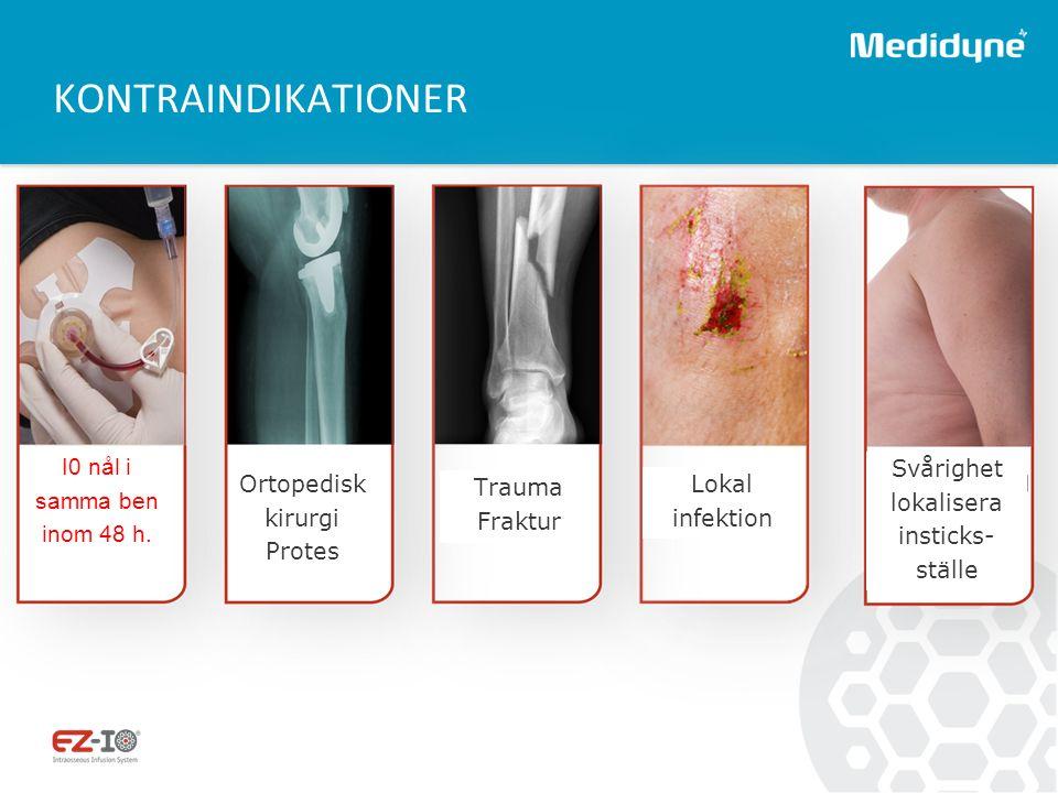 KONTRAINDIKATIONER Ortopedisk kirurgi Protes Trauma Fraktur Lokal infektion I0 nål i samma ben inom 48 h. Svårighet lokalisera insticks- ställe