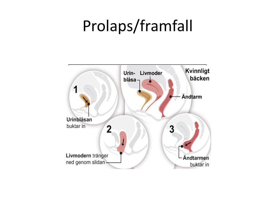 Prolaps/framfall