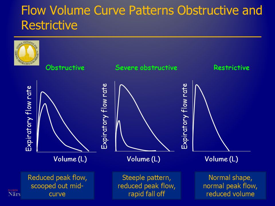 DIVISION Närsjukvård Flow Volume Curve Patterns Obstructive and Restrictive ObstructiveSevere obstructiveRestrictive Volume (L) Expiratory flow rate V
