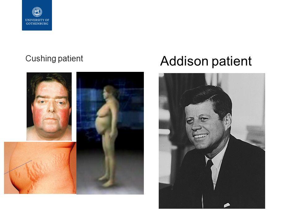 Cushing patient Addison patient