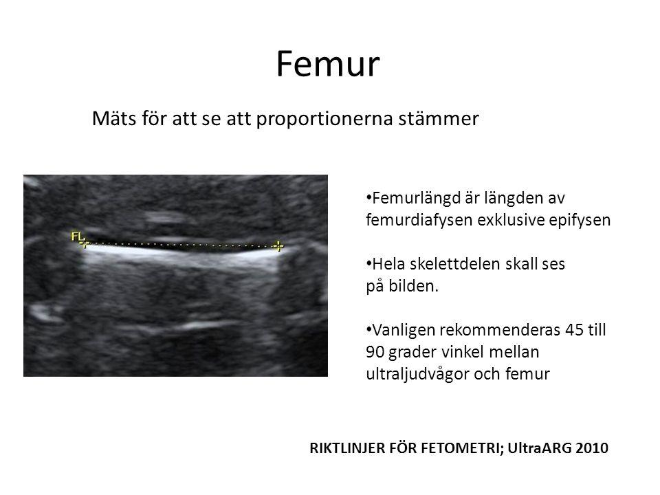 Femur Femurlängd är längden av femurdiafysen exklusive epifysen Hela skelettdelen skall ses på bilden.