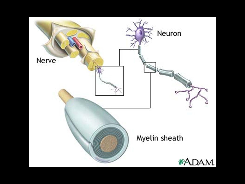 Patologi  Plack i central nervsystemet!