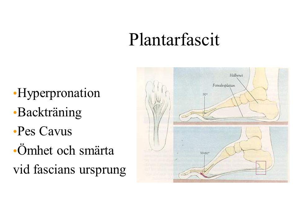 Plantarfascit Hyperpronation Backträning Pes Cavus Ömhet och smärta vid fascians ursprung