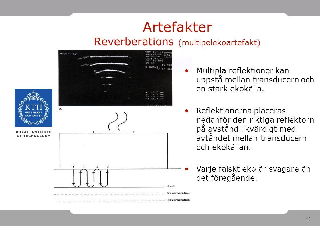 17 Artefakter Reverberations (multipelekoartefakt) Multipla reflektioner kan uppstå mellan transducern och en stark ekokälla.