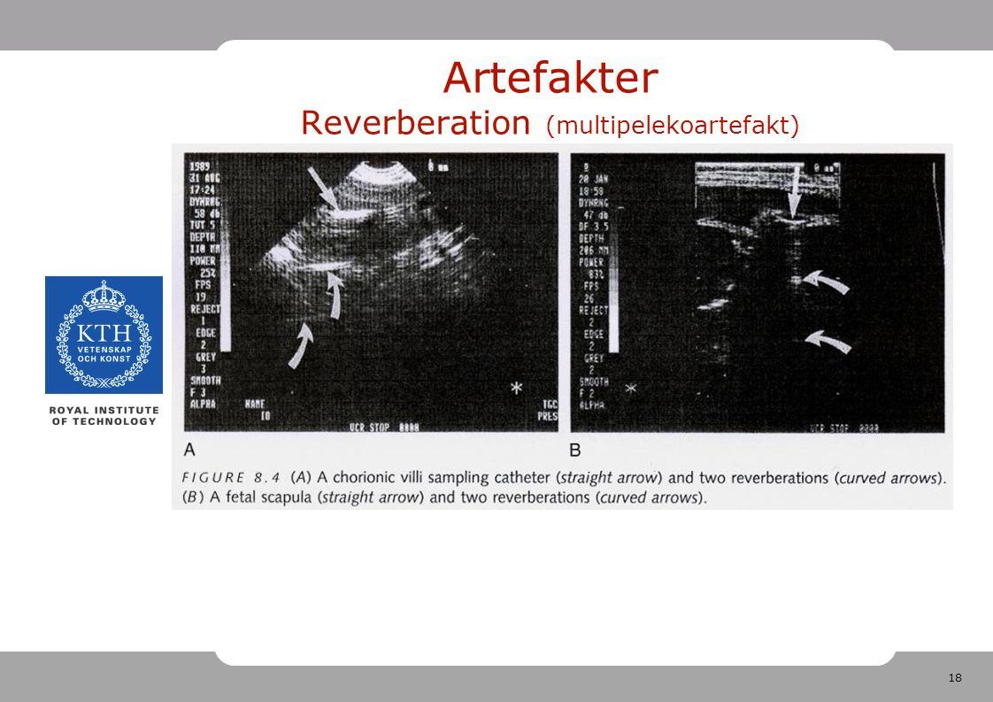 18 Artefakter Reverberation (multipelekoartefakt)