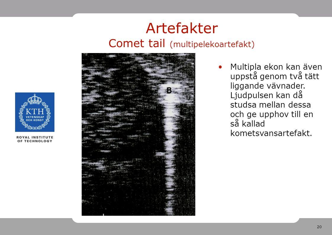 20 Artefakter Comet tail (multipelekoartefakt) Multipla ekon kan även uppstå genom två tätt liggande vävnader.