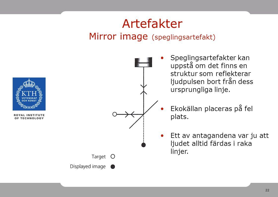 22 Artefakter Mirror image (speglingsartefakt) Speglingsartefakter kan uppstå om det finns en struktur som reflekterar ljudpulsen bort från dess ursprungliga linje.