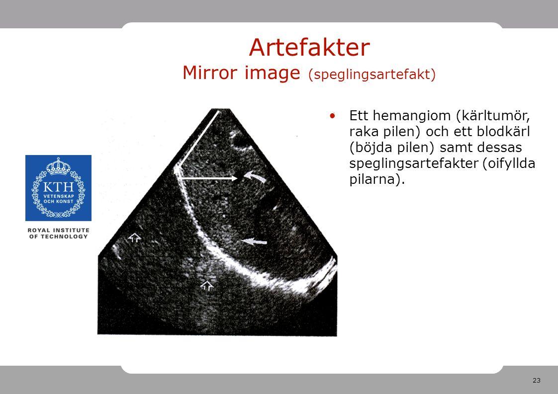 23 Artefakter Mirror image (speglingsartefakt) Ett hemangiom (kärltumör, raka pilen) och ett blodkärl (böjda pilen) samt dessas speglingsartefakter (oifyllda pilarna).