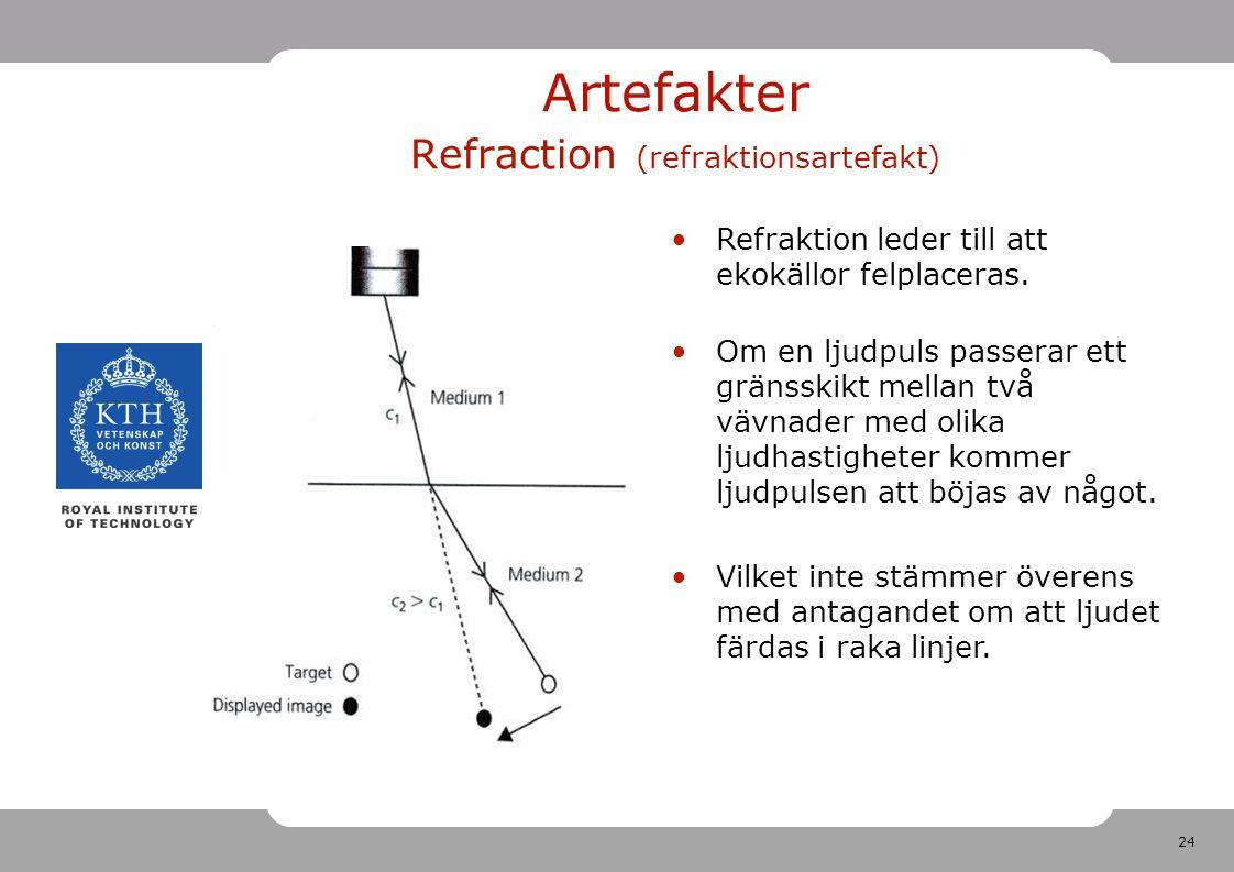 24 Artefakter Refraction (refraktionsartefakt) Refraktion leder till att ekokällor felplaceras.