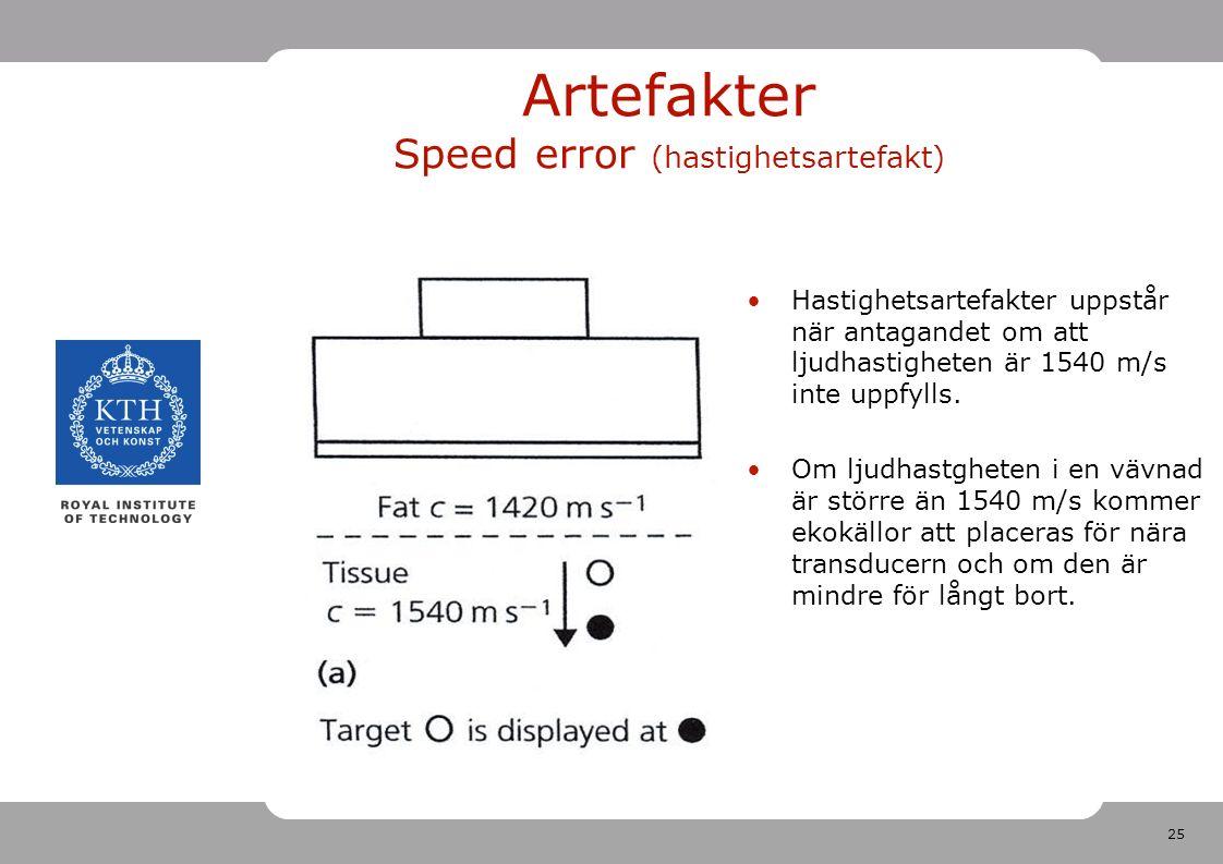 25 Artefakter Speed error (hastighetsartefakt) Hastighetsartefakter uppstår när antagandet om att ljudhastigheten är 1540 m/s inte uppfylls.