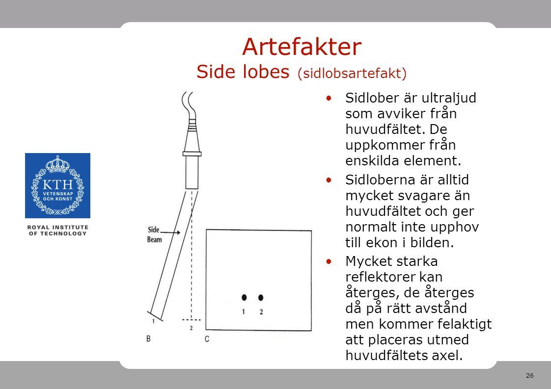 26 Artefakter Side lobes (sidlobsartefakt) Sidlober är ultraljud som avviker från huvudfältet.