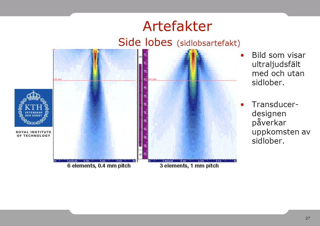 27 Artefakter Side lobes (sidlobsartefakt) Bild som visar ultraljudsfält med och utan sidlober.