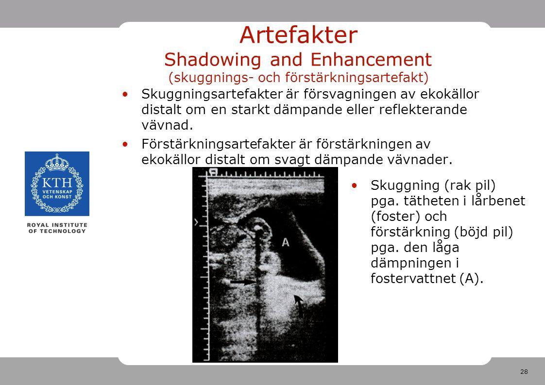 28 Artefakter Shadowing and Enhancement (skuggnings- och förstärkningsartefakt) Skuggningsartefakter är försvagningen av ekokällor distalt om en starkt dämpande eller reflekterande vävnad.