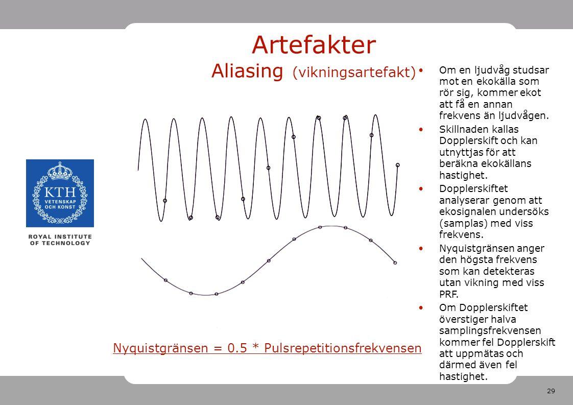 29 Artefakter Aliasing (vikningsartefakt) Nyquistgränsen = 0.5 * Pulsrepetitionsfrekvensen Om en ljudvåg studsar mot en ekokälla som rör sig, kommer ekot att få en annan frekvens än ljudvågen.
