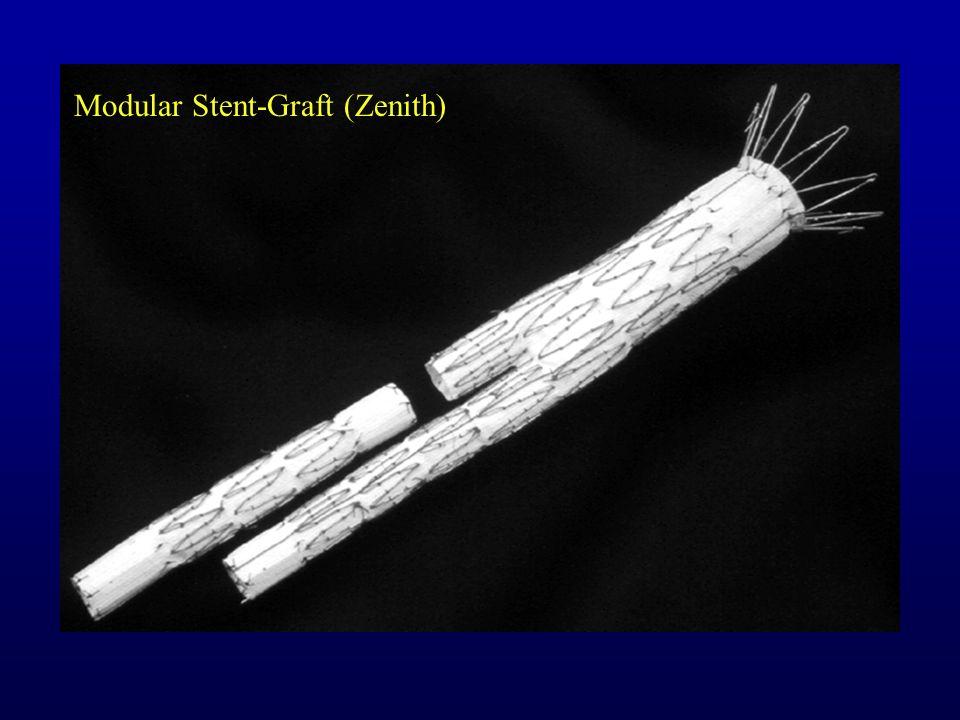 Modular Stent-Graft (Zenith)