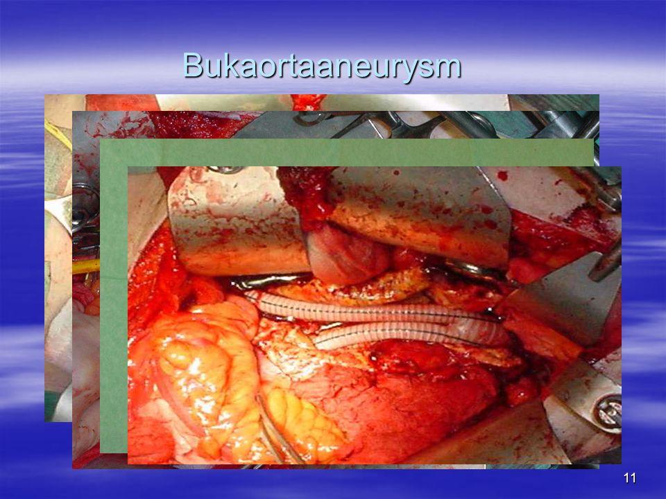 11 Bukaortaaneurysm