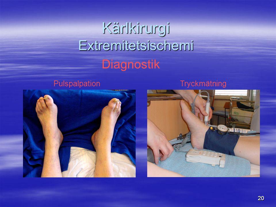 20 Kärlkirurgi Extremitetsischemi Diagnostik PulspalpationTryckmätning