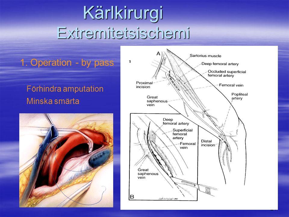 24 Kärlkirurgi Extremitetsischemi 1. Operation - by pass Förhindra amputation Minska smärta