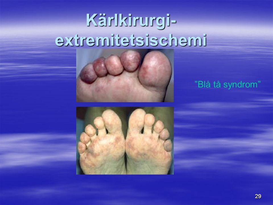 29 Kärlkirurgi- extremitetsischemi Blå tå syndrom