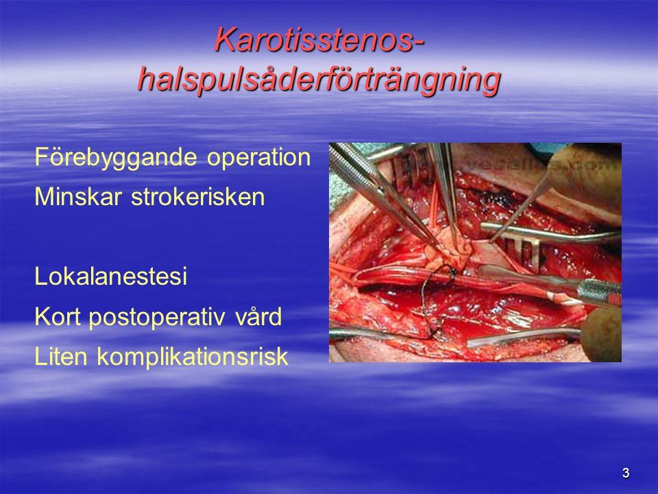 3 Förebyggande operation Minskar strokerisken Lokalanestesi Kort postoperativ vård Liten komplikationsrisk Karotisstenos- halspulsåderförträngning