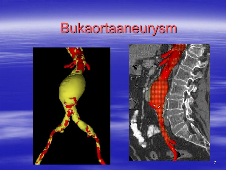 7 Bukaortaaneurysm