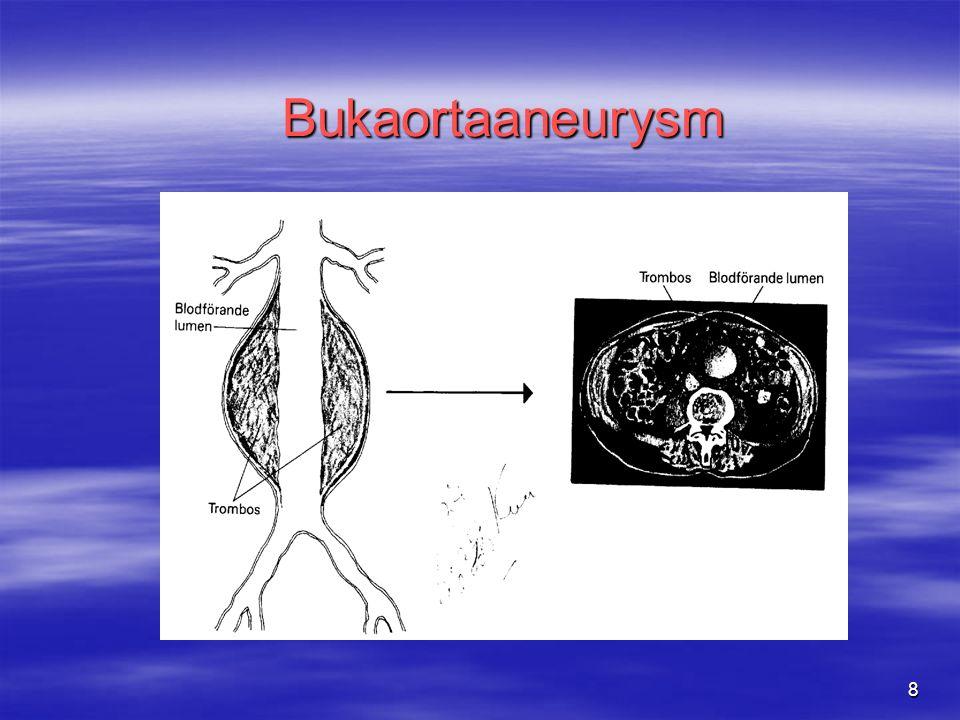 8 Bukaortaaneurysm