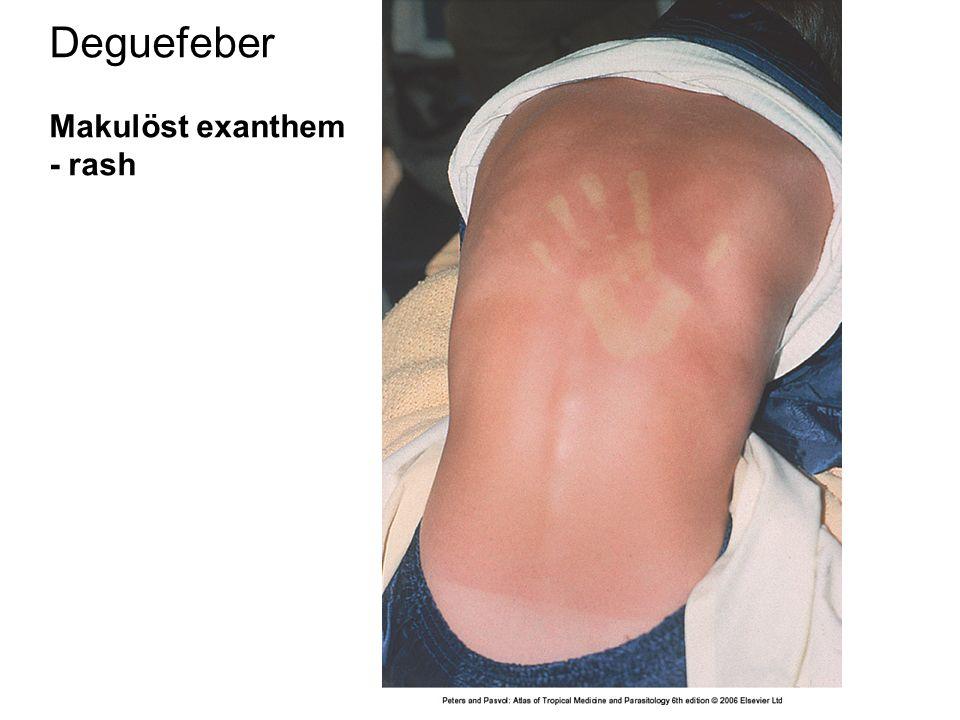 Deguefeber Makulöst exanthem - rash