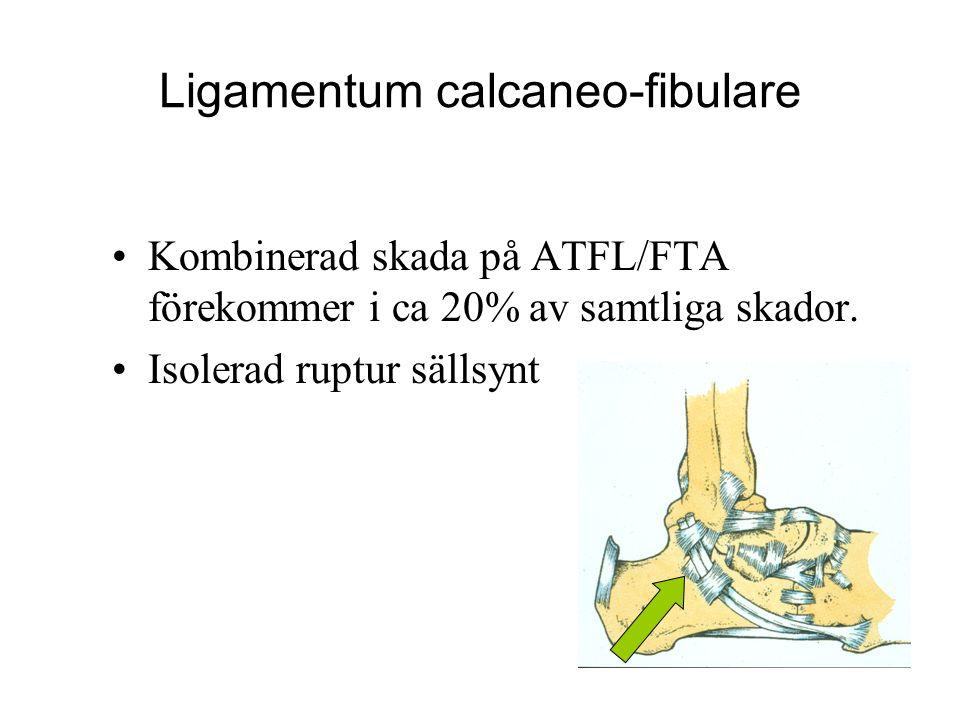 Ligamentum calcaneo-fibulare Kombinerad skada på ATFL/FTA förekommer i ca 20% av samtliga skador.