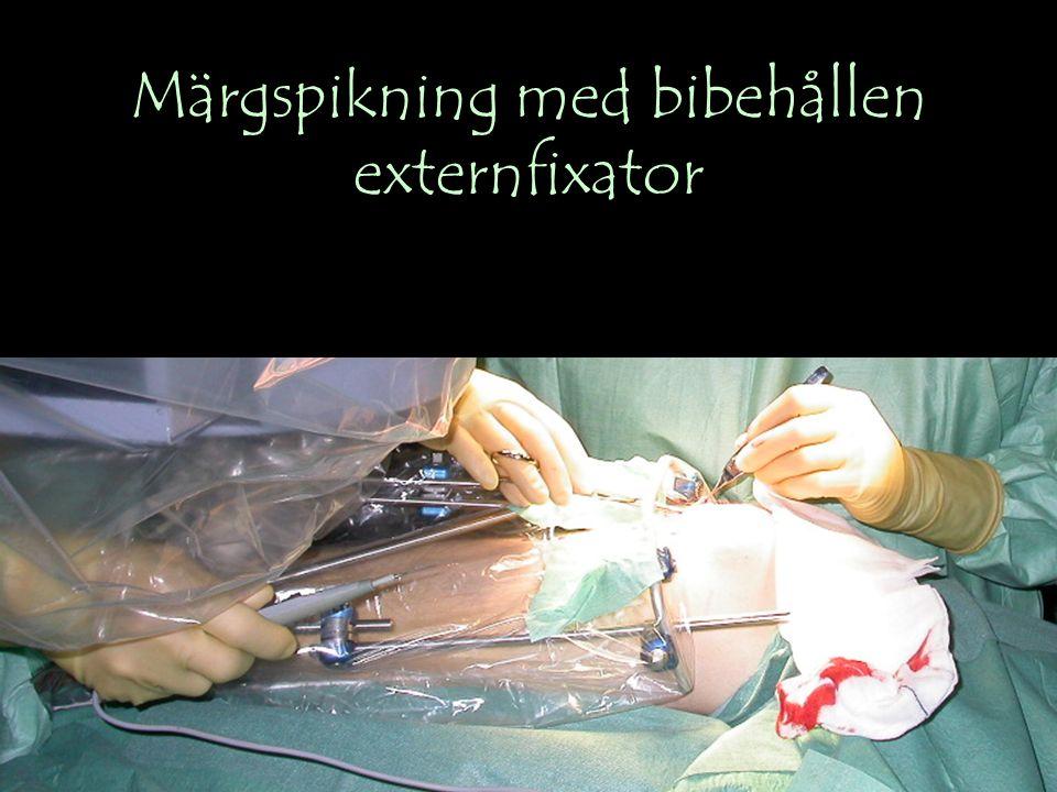 Märgspikning med bibehållen externfixator