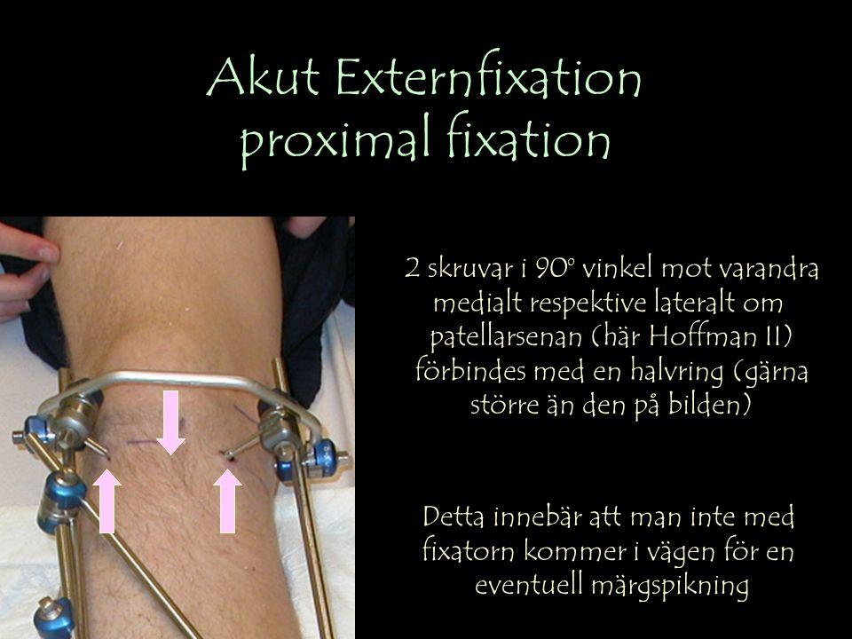 Akut Externfixation proximal fixation 2 skruvar i 90 0 vinkel mot varandra medialt respektive lateralt om patellarsenan (här Hoffman II) förbindes med en halvring (gärna större än den på bilden) Detta innebär att man inte med fixatorn kommer i vägen för en eventuell märgspikning