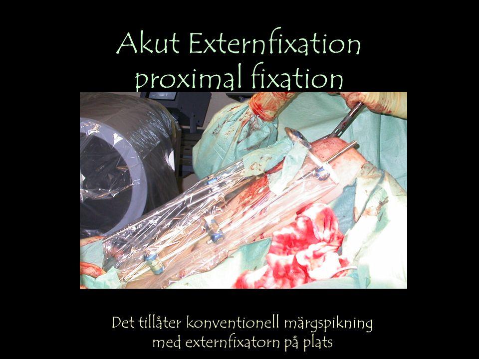 Akut Externfixation proximal fixation Det tillåter konventionell märgspikning med externfixatorn på plats