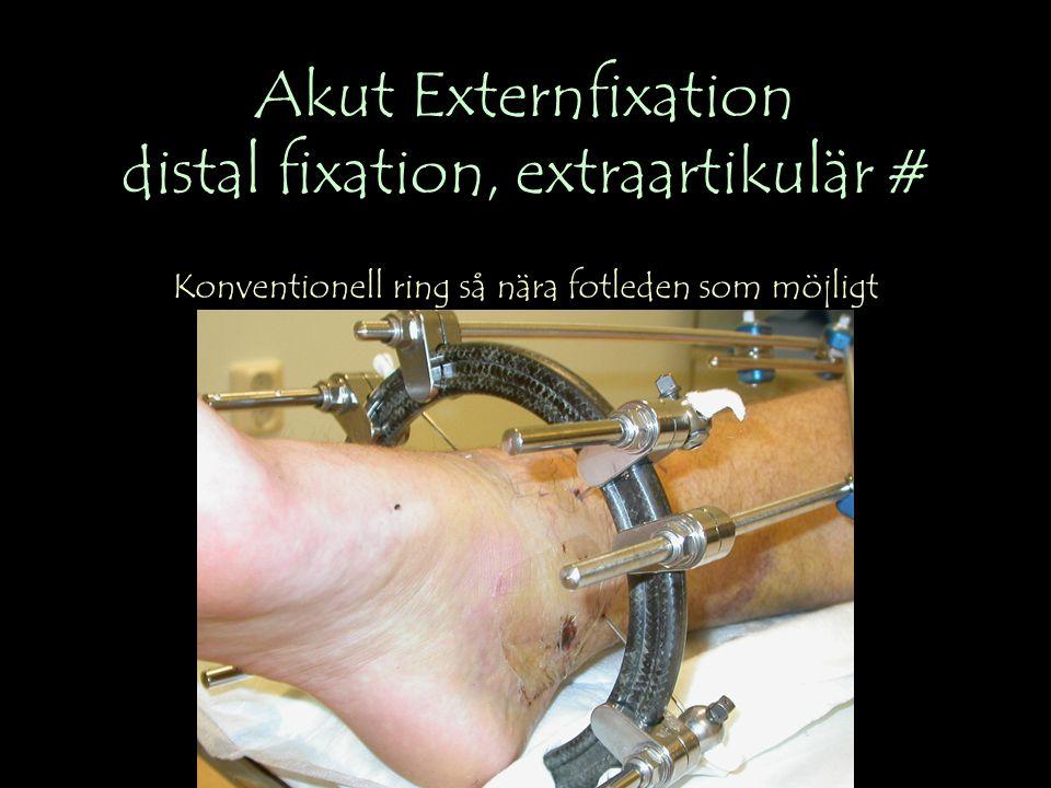 Akut Externfixation distal fixation, extraartikulär # Konventionell ring så nära fotleden som möjligt
