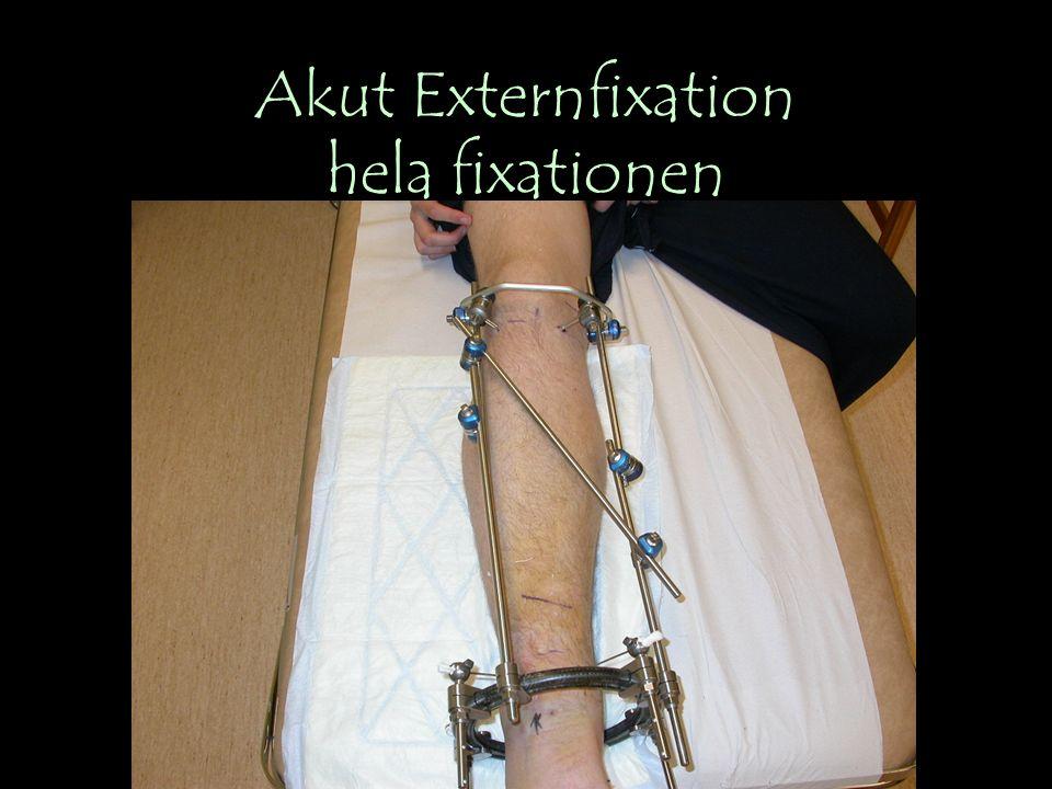 Akut Externfixation hela fixationen