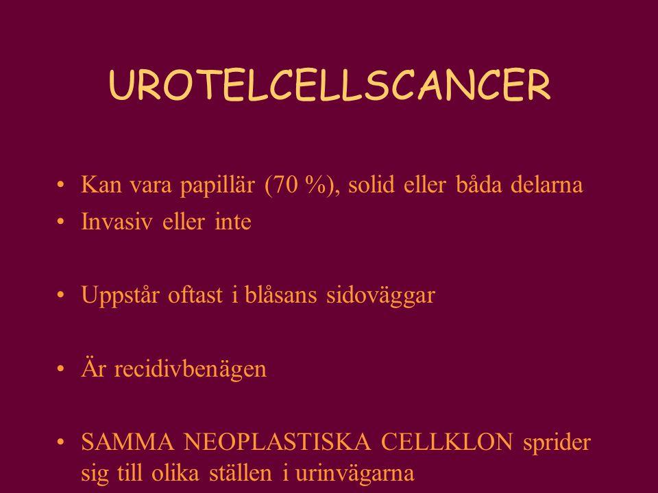 UROTELCELLSCANCER Kan vara papillär (70 %), solid eller båda delarna Invasiv eller inte Uppstår oftast i blåsans sidoväggar Är recidivbenägen SAMMA NE