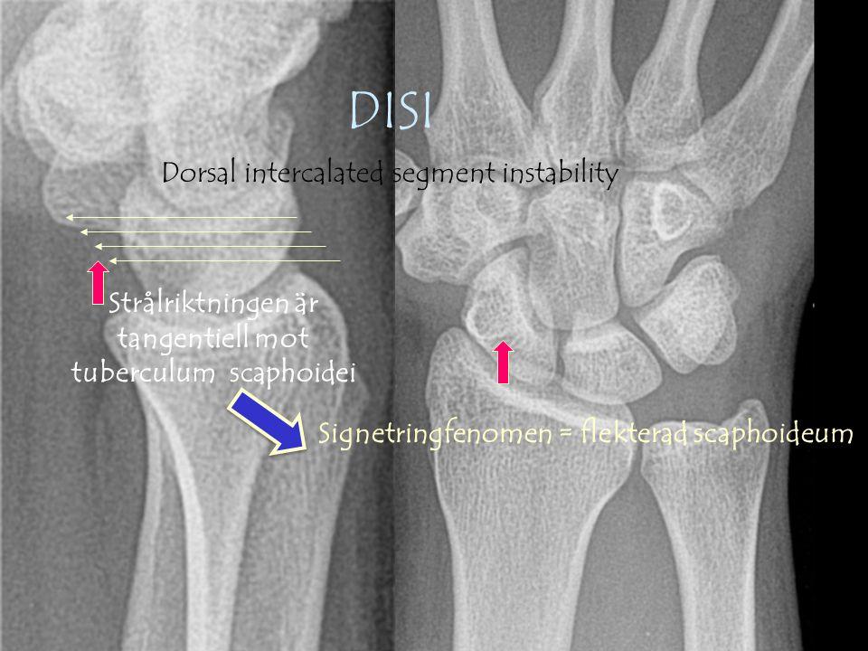 Gunnar Galeazzo Buttazzoni, Copyrighto 63 o 47 o DISI,VISI SL-vinkeln Scapholunära vinkeln är normalt 47 o (30-60 o )  > 60 o talar för DISI (ruptur SL-ligamentet)  < 30 o talar för VISI (ruptur LT-ligamentet) Bägge sidor på 26 årig kvinna som fått en total ruptur på SL-ligamentet 2 dagar innan.