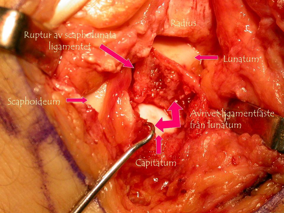 Gunnar Galeazzo Buttazzoni, Copyrighto Ruptur av SL-ligament och mellan lunatum-capitatum Capitatum Radius Lunatum Scaphoideum Avrivet ligamentfäste från lunatum Ruptur av scapholunata ligamentet