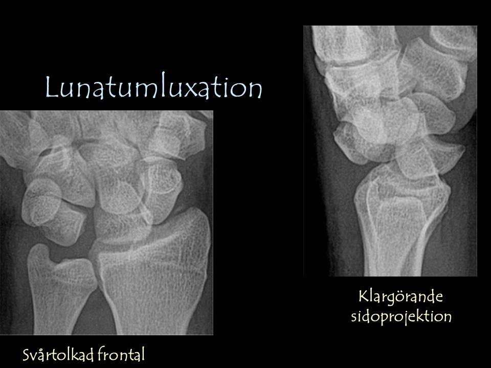 Lunatumluxation Svårtolkad frontal Klargörande sidoprojektion
