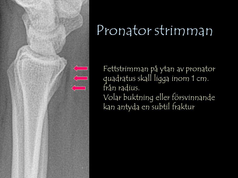 Pronator strimman Fettstrimman på ytan av pronator quadratus skall ligga inom 1 cm. från radius. Volar buktning eller försvinnande kan antyda en subti