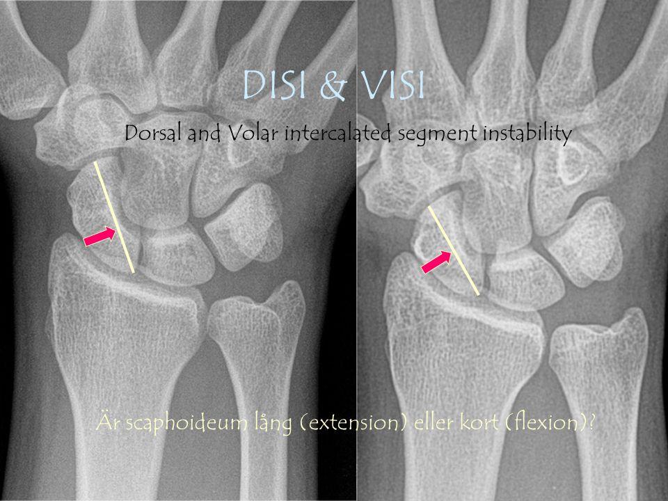 Gunnar Galeazzo Buttazzoni, Copyrighto DISI & VISI Dorsal and Volar intercalated segment instability Är scaphoideum lång (extension) eller kort (flexion)