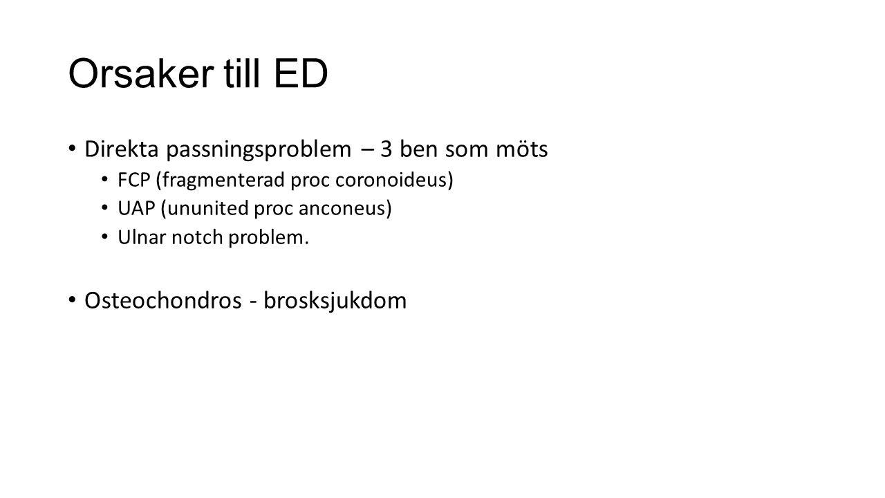 Orsaker till ED Direkta passningsproblem – 3 ben som möts FCP (fragmenterad proc coronoideus) UAP (ununited proc anconeus) Ulnar notch problem. Osteoc