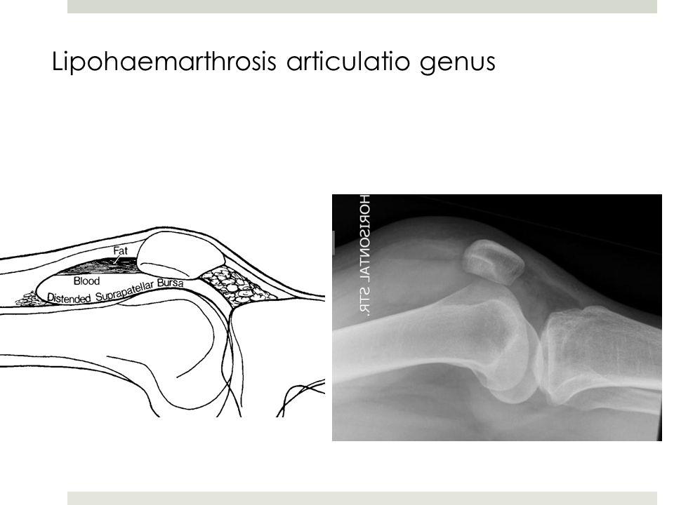 Lipohaemarthrosis articulatio genus