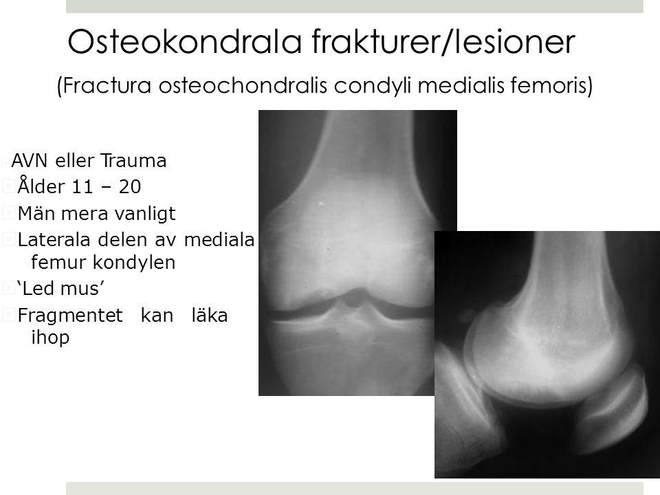 (Fractura osteochondralis condyli medialis femoris)  AVN eller Trauma  Ålder 11 – 20  Män mera vanligt  Laterala delen av mediala femur kondylen  'Led mus'  Fragmentet kan läka ihop Osteokondrala frakturer/lesioner