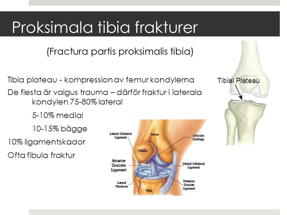 Proksimala tibia frakturer (Fractura partis proksimalis tibia) Tibia plateau - kompression av femur kondylerna De flesta är valgus trauma – därför fraktur i laterala kondylen 75-80% lateral 5-10% medial 10-15% bägge 10% ligamentskador Ofta fibula fraktur