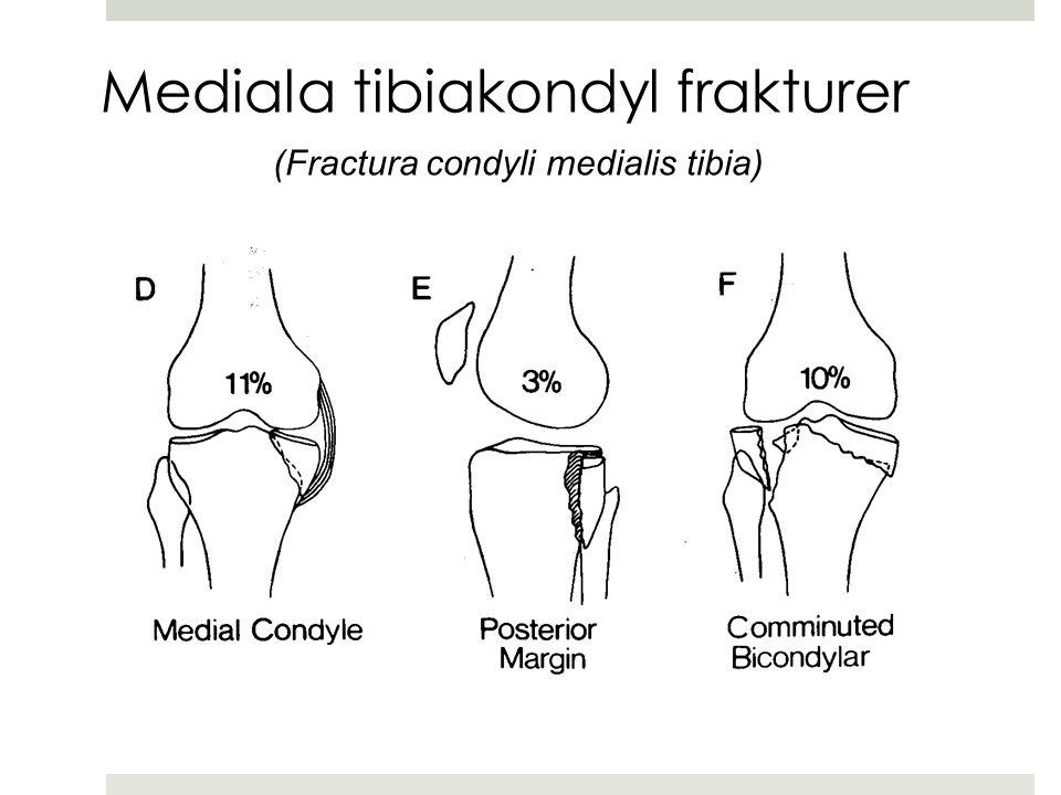 Mediala tibiakondyl frakturer (Fractura condyli medialis tibia)