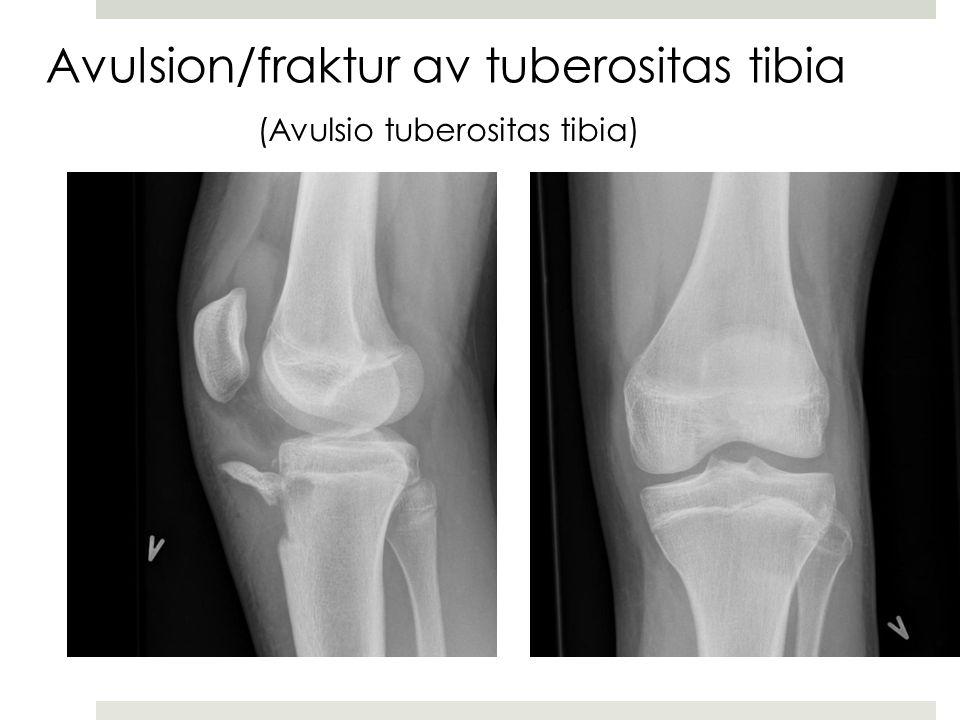 Avulsion/fraktur av tuberositas tibia (Avulsio tuberositas tibia)