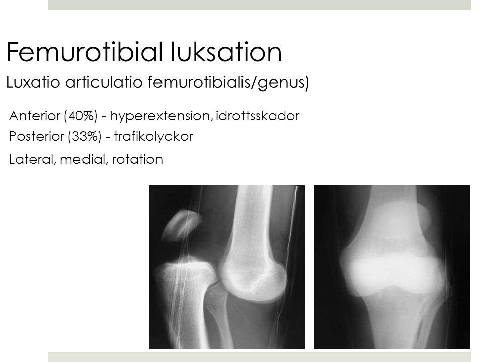 Femurotibial luksation Luxatio articulatio femurotibialis/genus) Anterior (40%) - hyperextension, idrottsskador Posterior (33%) - trafikolyckor Lateral, medial, rotation