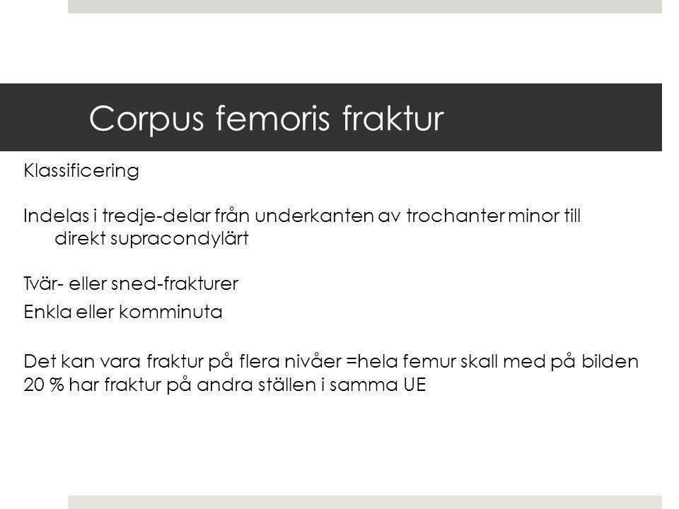 Corpus femoris fraktur Klassificering Indelas i tredje-delar från underkanten av trochanter minor till direkt supracondylärt Tvär- eller sned-frakturer Enkla eller komminuta Det kan vara fraktur på flera nivåer = hela femur skall med på bilden 20 % har fraktur på andra ställen i samma UE