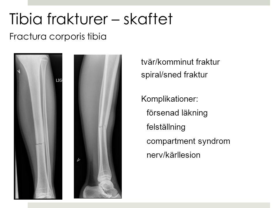 Tibia frakturer – skaftet Fractura corporis tibia tvär/komminut fraktur spiral/sned fraktur Komplikationer: försenad läkning felställning compartment syndrom nerv/kärllesion