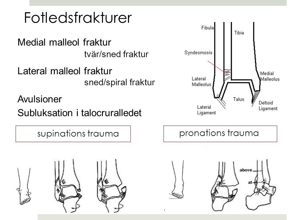 Medial malleol fraktur tvär/sned fraktur Lateral malleol fraktur sned/spiral fraktur Avulsioner Subluksation i talocruralledet Fotledsfrakturer supinations trauma pronations trauma